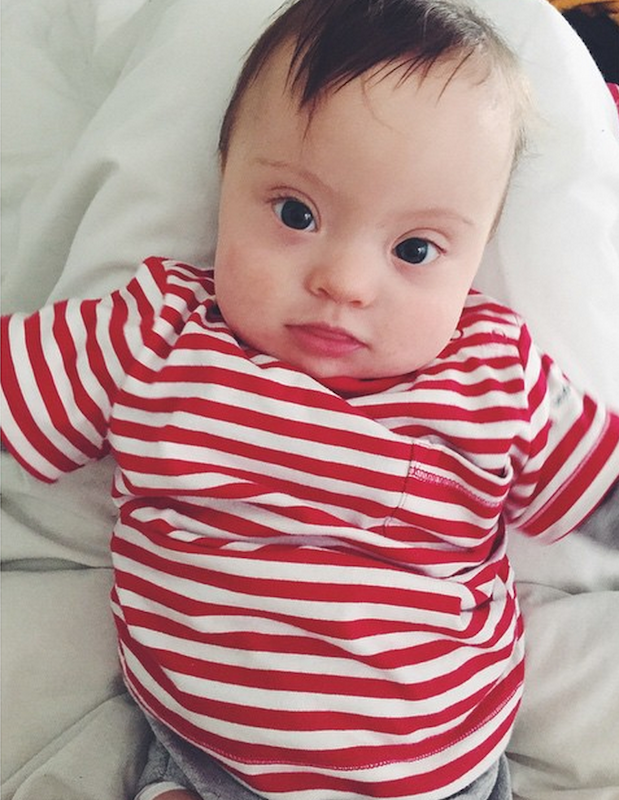 Amanda Booth's Baby With Down Syndrome Begins Modeling ...