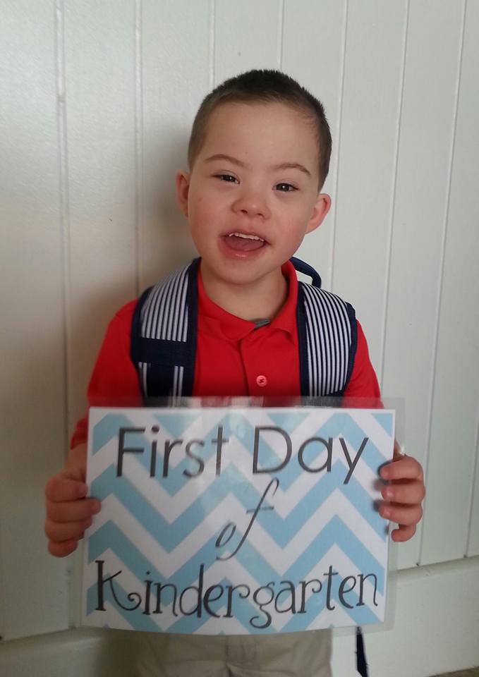 Jacob has down syndrome and had open heart surgery at children s