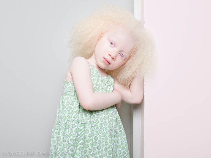 Image result for 10 Dangerous Myths About Albinism, and the Truths Behind Them