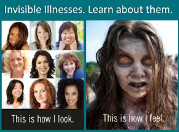 fibromyalgia meme: invisible illnesses. learn about them. this is how i look. this is how i feel.