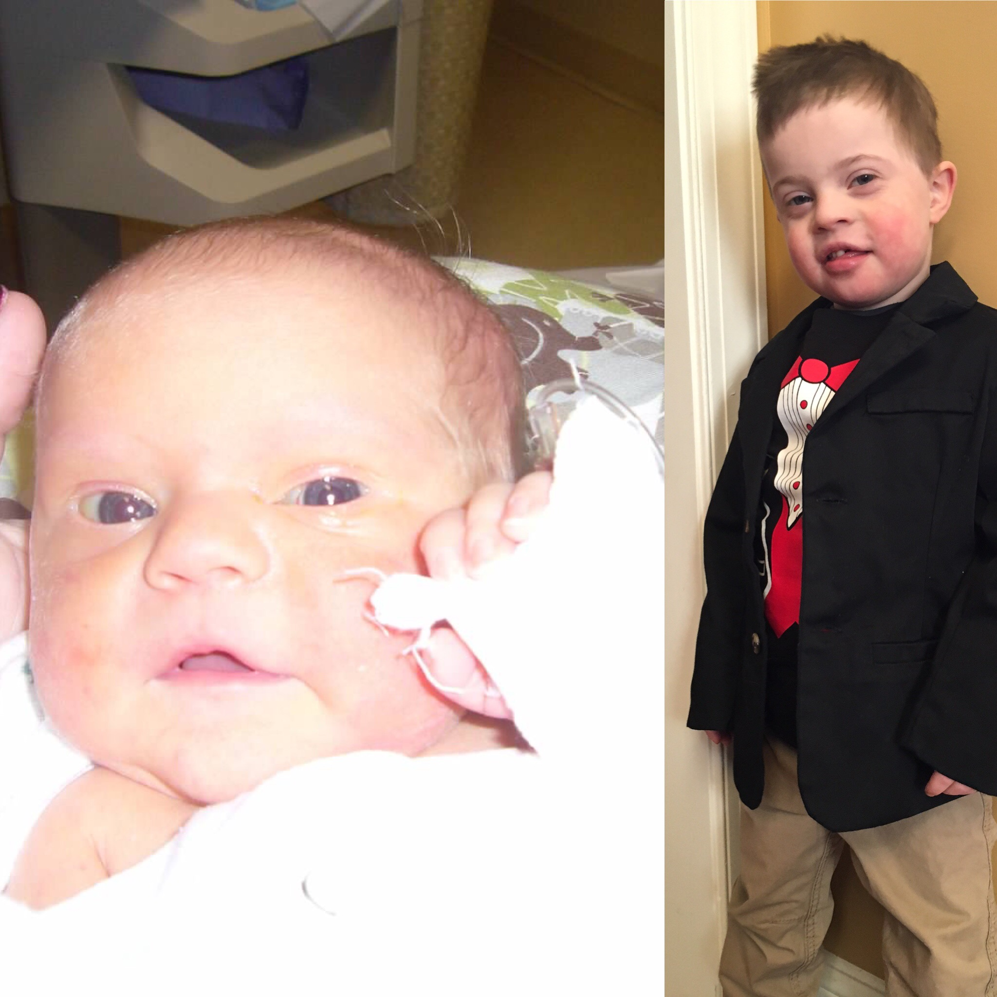Side by side photos of baby and little boy