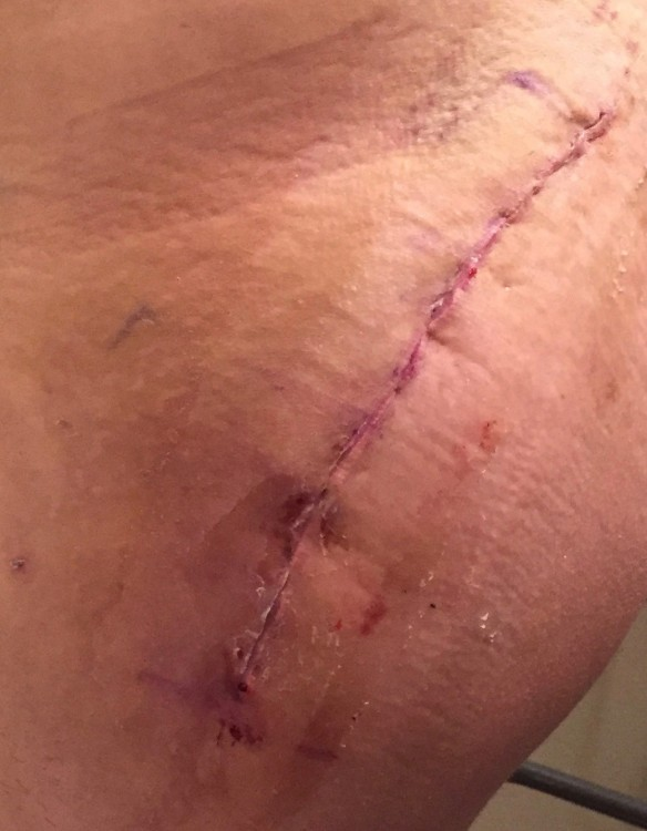 scar from surgery on man's hip