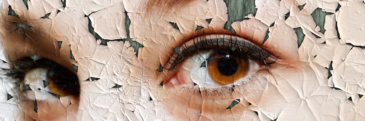 face covered with cracked surface