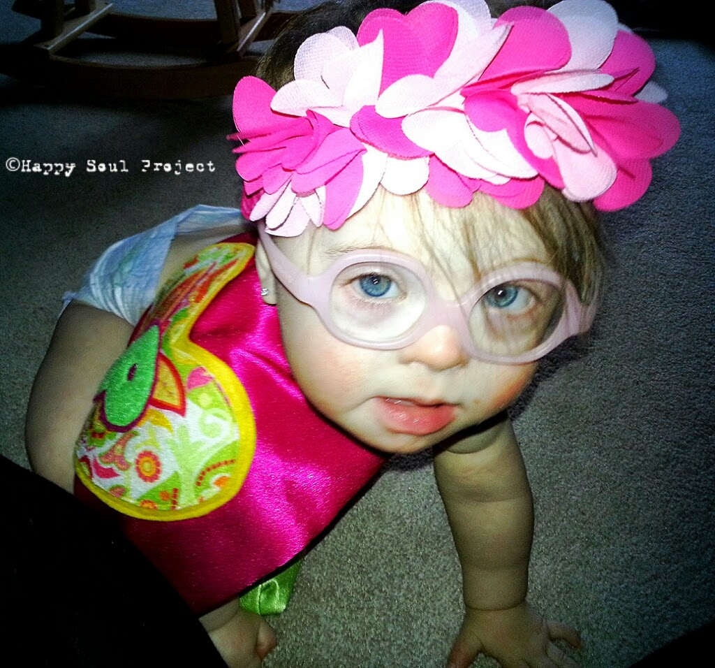 baby with down syndrome crawling