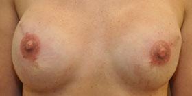 bilateral nipple tattoo after