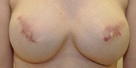 bilateral nipple tattoo before
