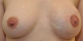 left nipple tattoo after