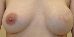 left nipple tattoo before
