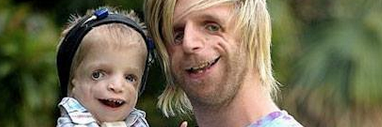 man and a child with Treacher Collins syndrome