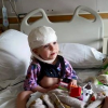 A small girl with a bandage on her head sits on a hospital bed