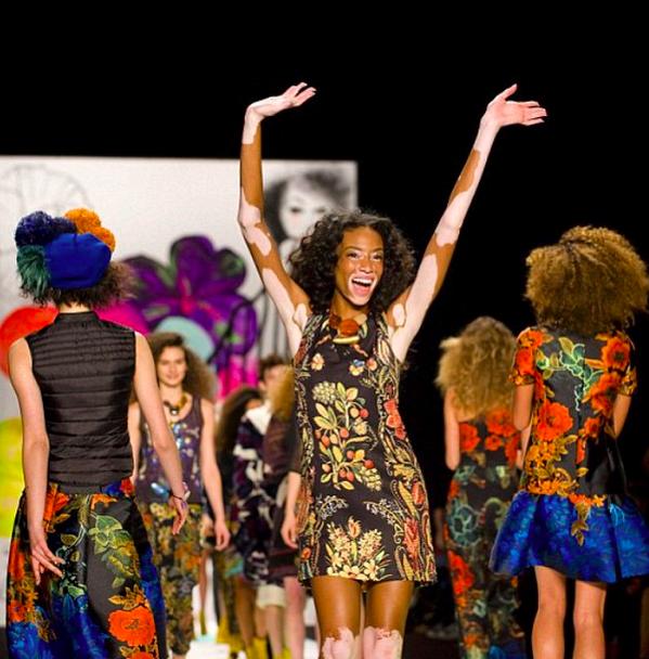 Tyra Banks Victoria S Secret Walk: Chantelle Winnie, Model With Vitiligo, Walks Runway At NY