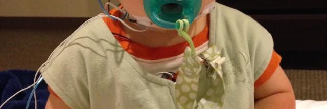 baby with tracheomalacia