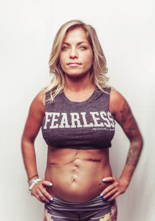 woman with scars on her stomach staring at camera