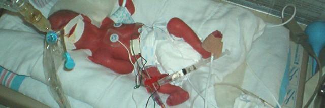 photo of premature baby