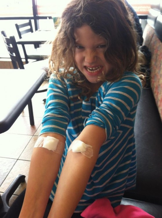 author's daughter showing IV injections on arms