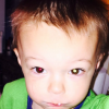 boy diagnosed with retinoblastoma after mom saw white glare over his pupil in photo
