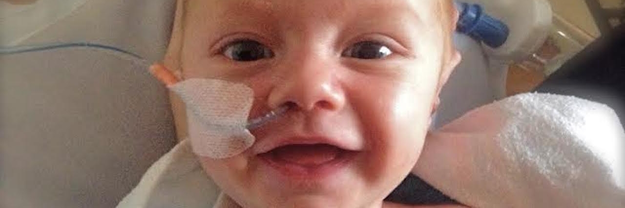 A small baby boy, smiles for camera with wires attached to his nose and his chest.