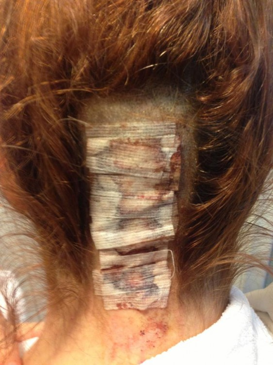 A close-up of the back of Kerri's head, partially shaved and covered with medical gauze