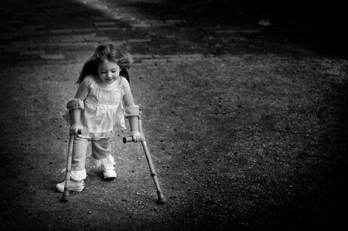 Redefining Spina Bifida