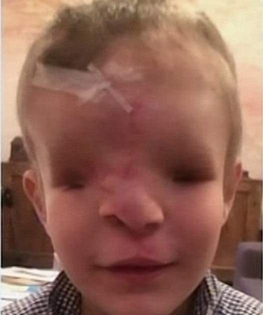 close up of young boy born with no eyes