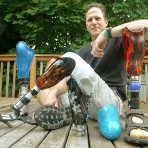 man poses with his prosthetic leg