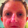 woman with red blotches as a result of scleroderma