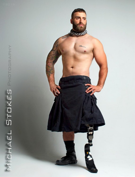 man with amputation wearing a kilt