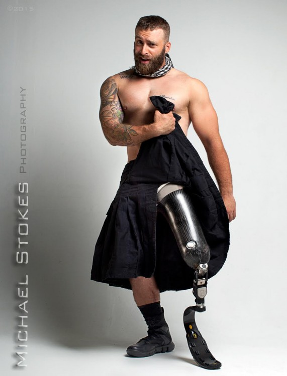 man lifting up his kilt to show amputation