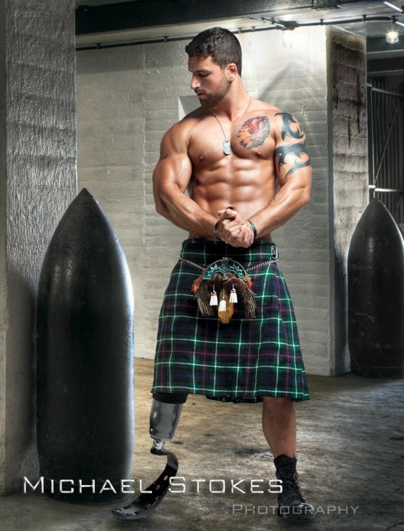 man with prosthetic leg wearing a green kilt