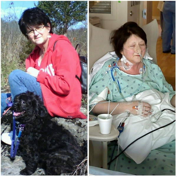 photo of older woman sitting outside with dog and photo of older woman in hospital gown