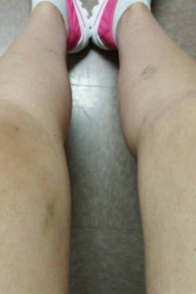 Bruises on a woman's legs.