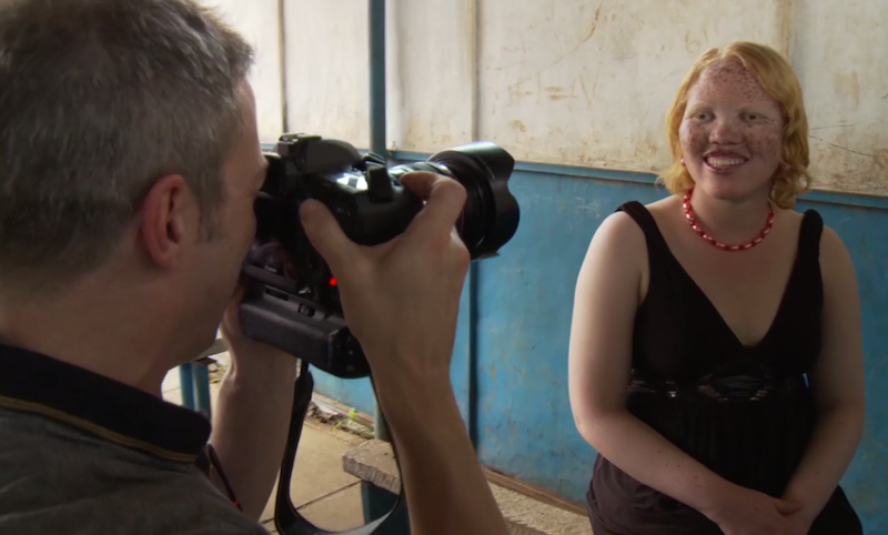 Guidotti photographs young woman with albinism