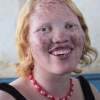 Rick Guidotti's photograph of Jayne Waithera, a young woman with albinism