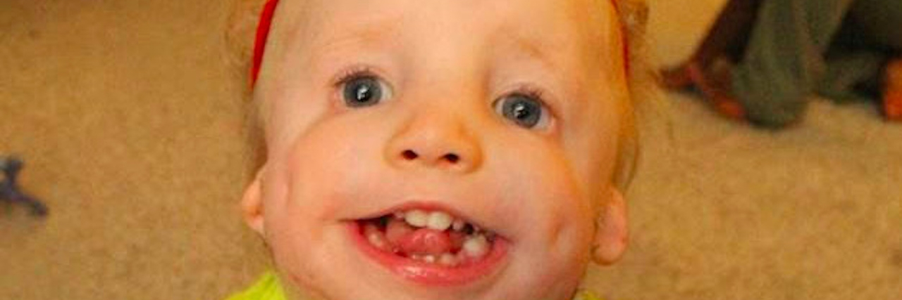 A small boy with a rare disorder smiles at camera