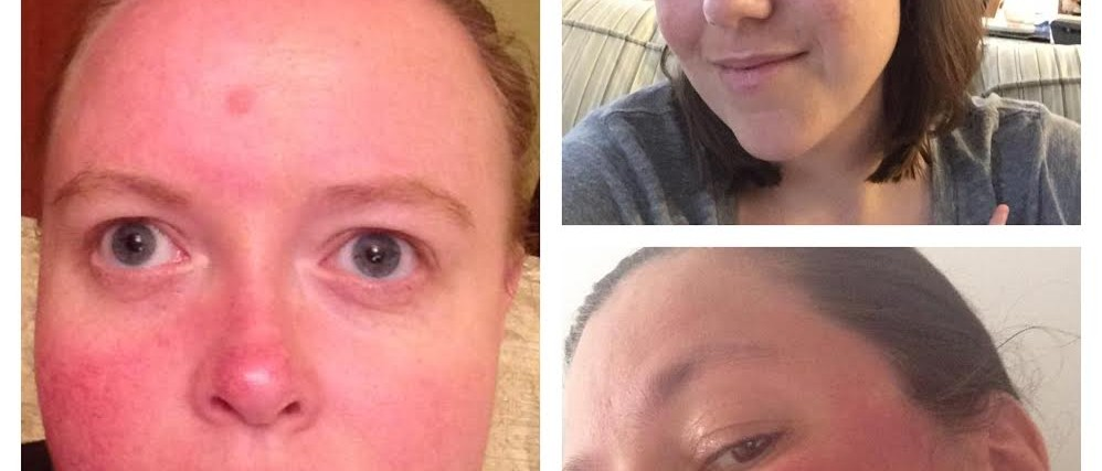 Photos of three women showing examples of rosacea