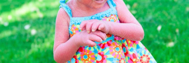 Small girl with skin disorder looks away from camera as she stands on green grass on a sunny day