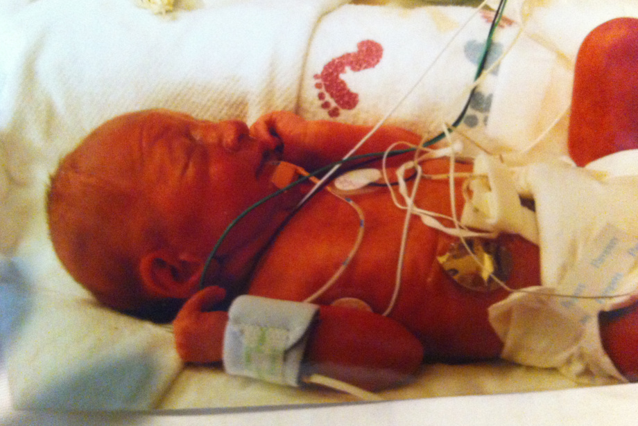 Cindy's daughter as a baby in the hospital
