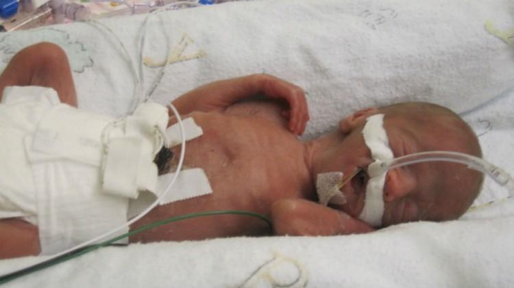 preemie baby in incubator