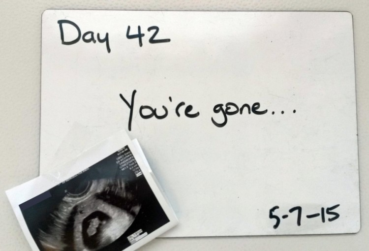 picture of ultrasound next to whiteboard that says 'day 42: you're gone...'