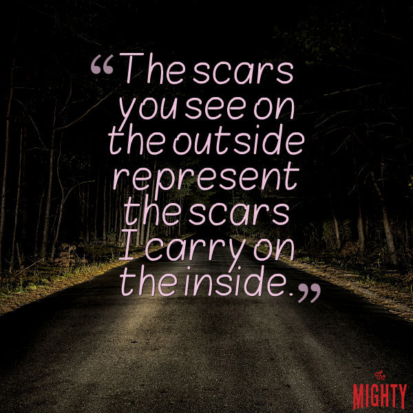 """The scars that you see on the outside represents the scars I carry on the inside.."""