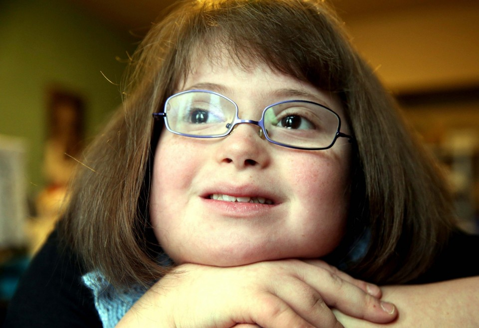 Downsyndrome People With Glasses
