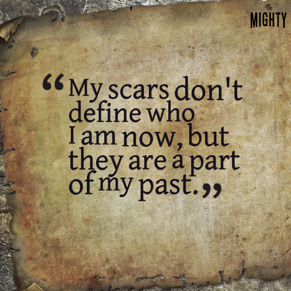 My scars don't define who I am now, but they are a part of my past.
