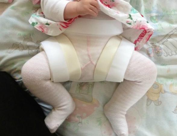 baby wearing a brace for hip dysplasia