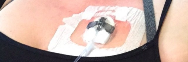 a port in a patients chest