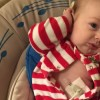 baby with g-tube wearing striped onesie