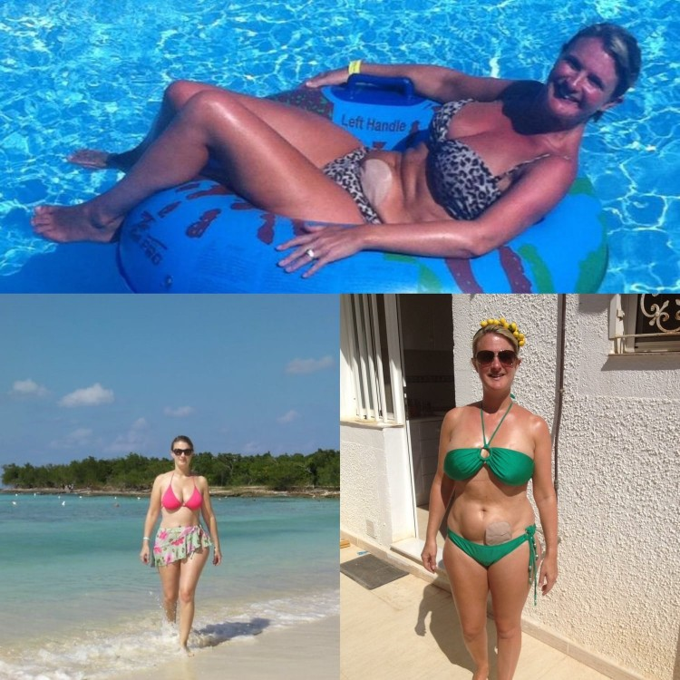 Woman with ostomy bag in bikini