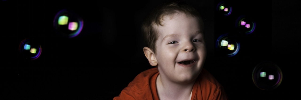 young child with moebius syndrome