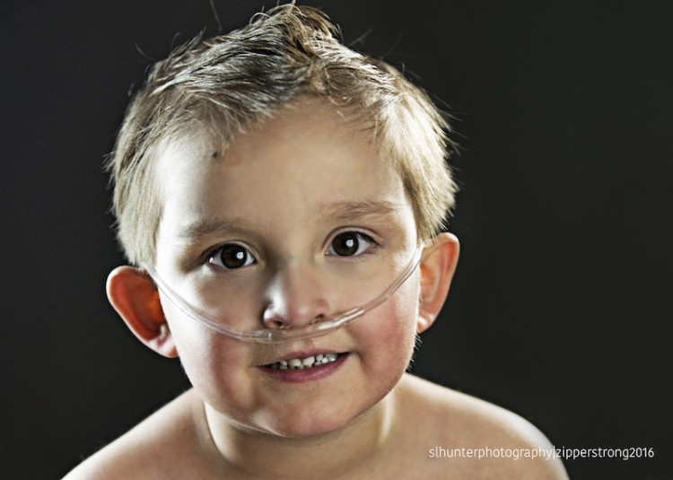 Boy with congenital heart defect
