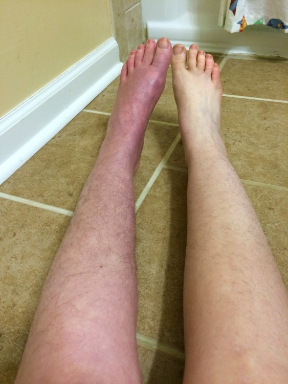 woman's legs showing one with complex regional pain syndrome