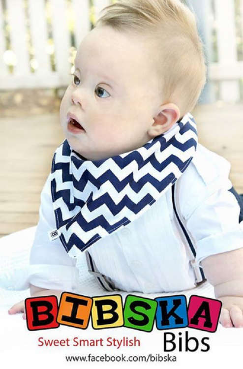 baby with Down syndrome modeling a bib